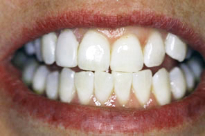 Brite Smile Teeth Whitening