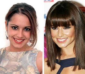 Porcelain Veneers Cheryl Cole Before and after