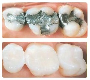 White Filings Before & After